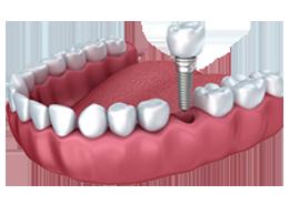 Implantaten behandeling