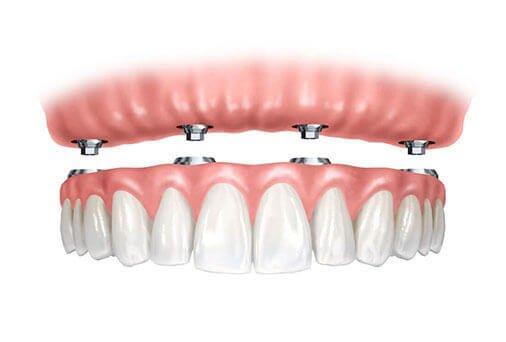 Nieuw gebit op implantaten