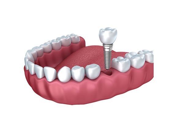 Vast gebit op implantaten